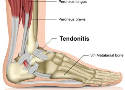 Tendonitis Signs, Diagnosis and Treatments